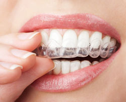 clear braces at advanced family dental